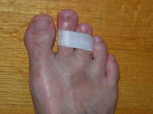 my broken toe taped to next toe July 28,2011