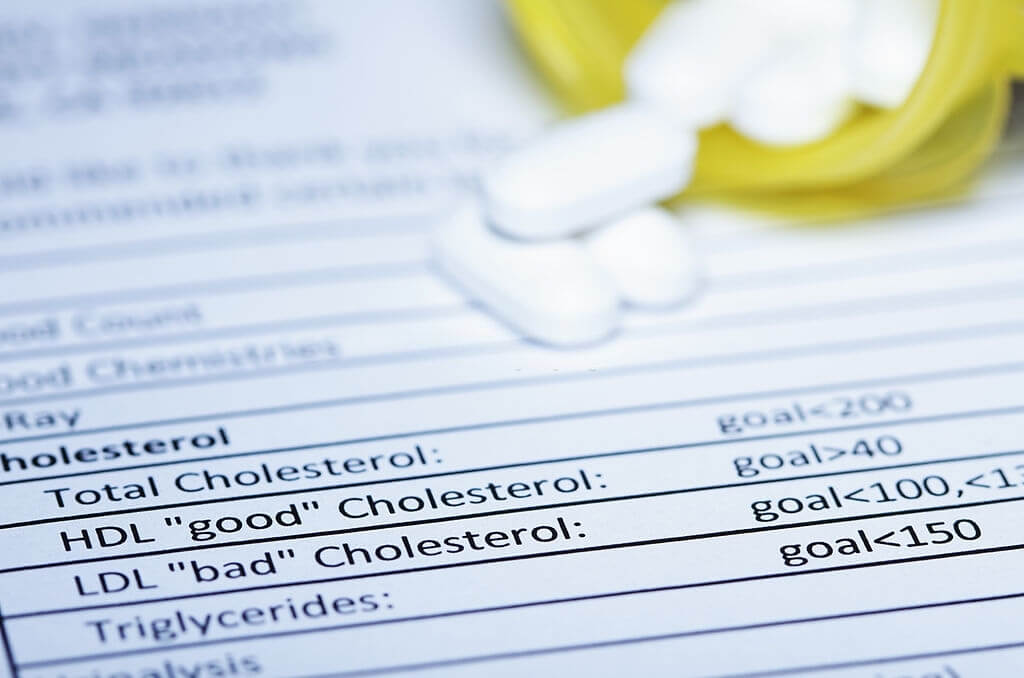 All About Small Dense LDL Cholesterol