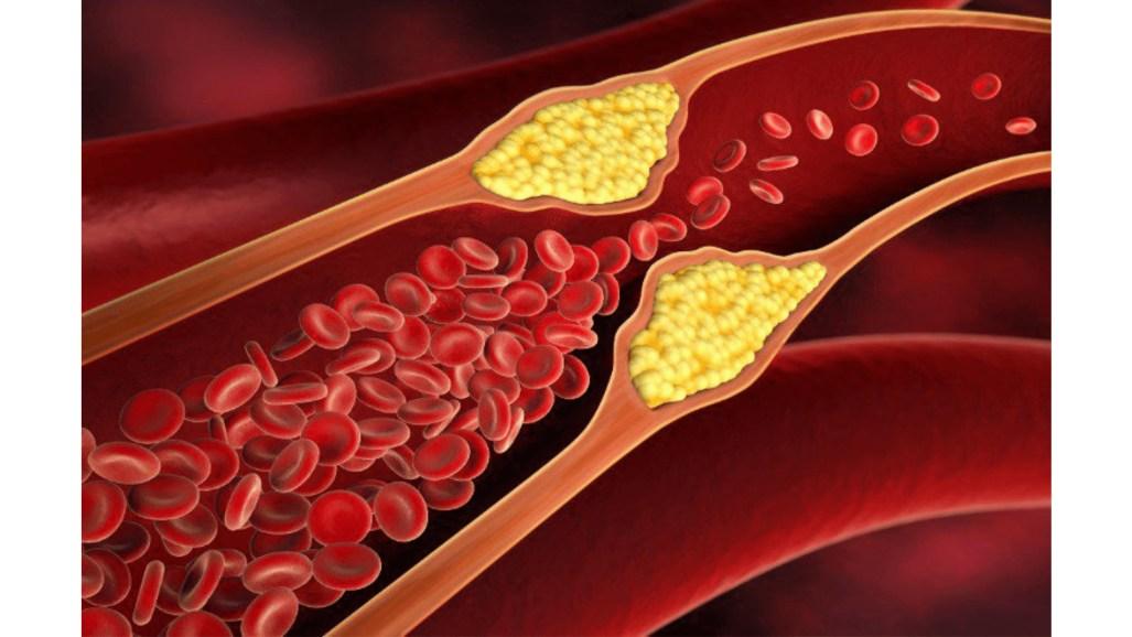 Cholesterol Symptoms On The Skin