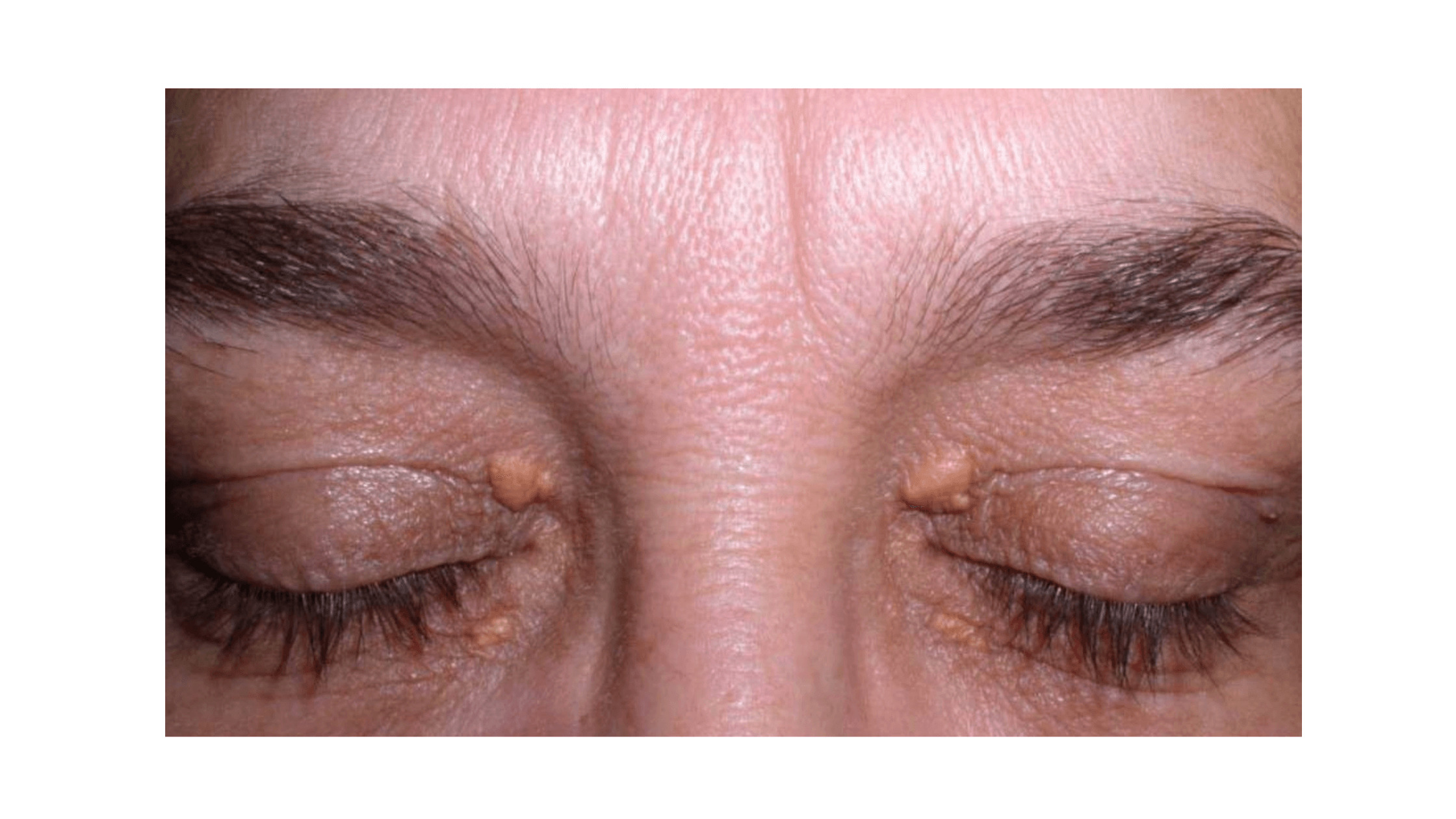 Cholesterol Bump On Eyelid – Causes, Prevention, And Remedies!
