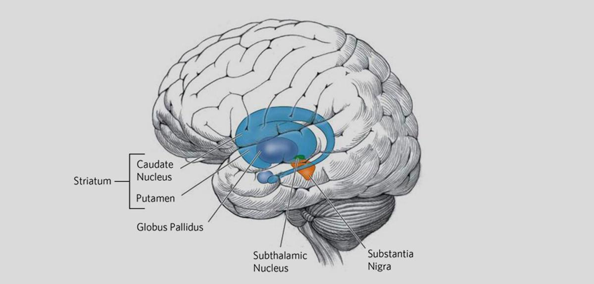 Huntington disease effects