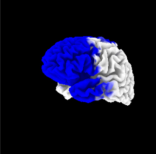 The blue sections represent areas of abnormally low brain activity in an ME patient.
