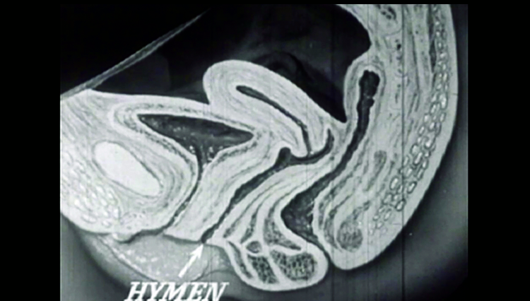 Diagram of a hymen from a 1940s educational film