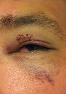 Joey Beltran's Eye