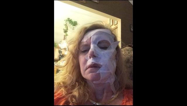 "Rene Urbanek says she uses Lidocaine patches on her face to numb her skin when it feels like it's ""burning on fire."" (Courtesy of Rene Urbanek)"