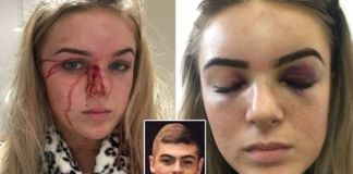 Brave Teen stripped naked and beaten by boyfriend