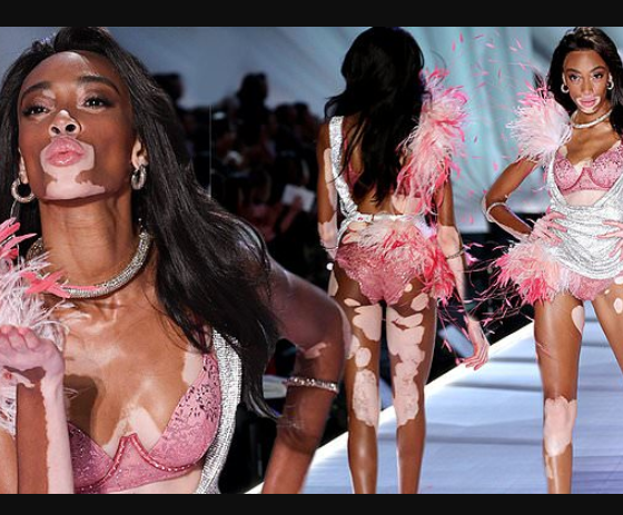 Winnie Harlow makes history as first model with vitiligo to walk the runway at Victoria's Secret Fashion Show (See Photos)