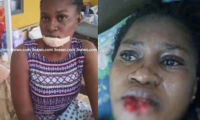 Jealous girlfriend bites off the lower lip of her suspected rival in Ghana.