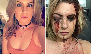 Gymgoer shares shocking injury pictures in bid to catch the hammer-wielding carjackers who battered her and stole her Audi