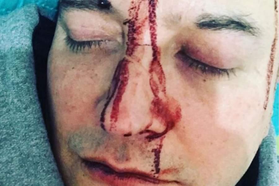 """(VIDEO) """"Hablé con un chico, le tiré onda y así respondió"""": el cantante argentino Leo García sufrió brutal ataque """"por ser gay"""""""