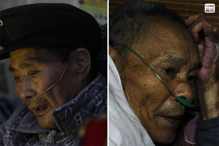 silicosis in China