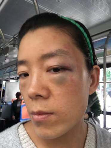 Li Aijie, 被家人殴打