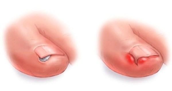 Как лечить нарыв на пальце возле ногтя (на руке, ноге ...