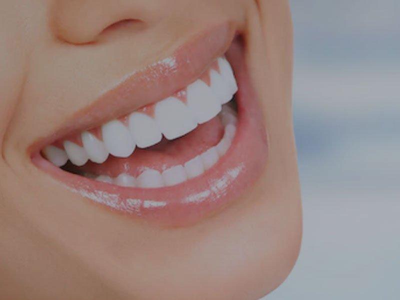 隱形矯正 - 隱適美 - 勤美牙醫診所