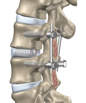 A Narrative Review of Lumbar Fusion Surgery With Relevance to Chiropractic Practice