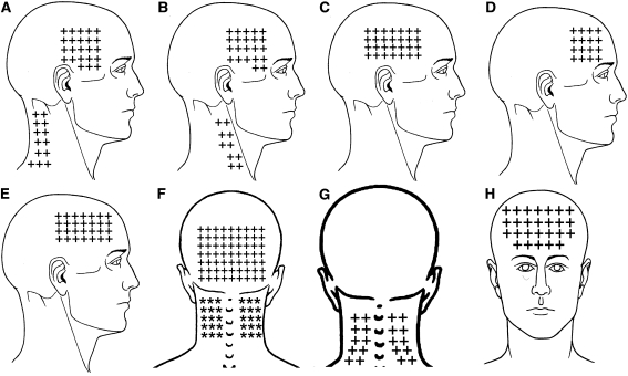 Referred Pain from Myofascial Trigger Points in Head and Neck-shoulder Muscles Reproduces Head Pain Features in Children With Chronic Tension type Headache