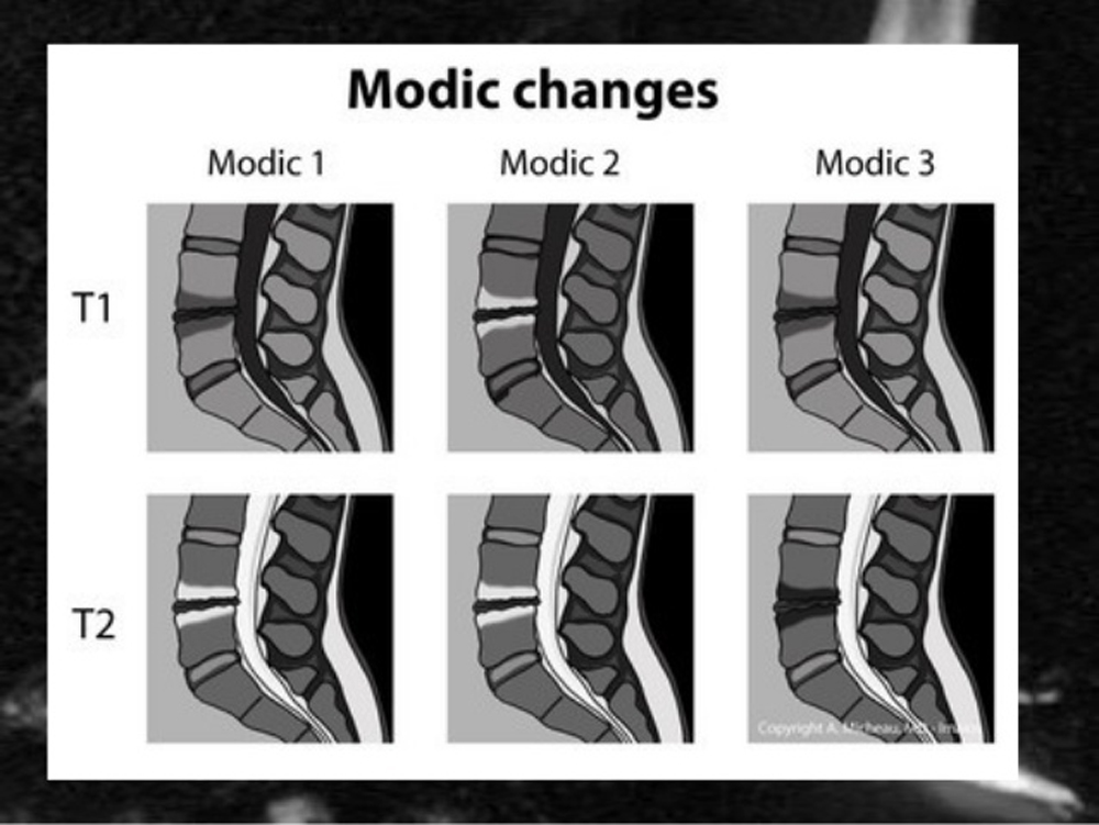 Comparison of Treatment Outcomes in Nonspecific Low-Back Pain Patients With and Without Modic Changes Who Receive Chiropractic Treatment