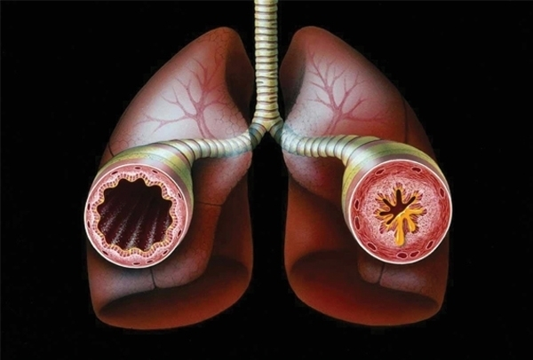 las egas asthma treatment