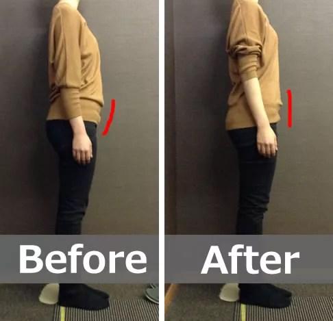 骨盤の前傾を改善することでポッコリおなかが解消された方のビフォー・アフター