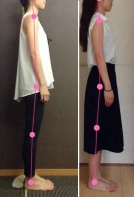 施術前と施術後では巻き肩が矯正されて肩こりが改善