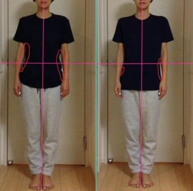 側湾による腰痛と肩こりの改善
