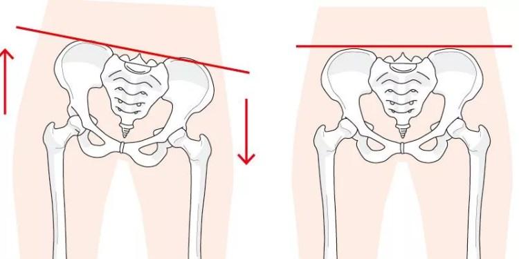 骨盤のゆがみを比較