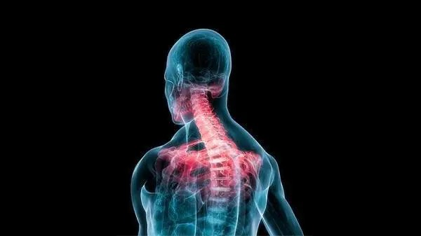 Whiplash Chiropractor: Abnormal Cervical Curvatures - El Paso Chiropractor