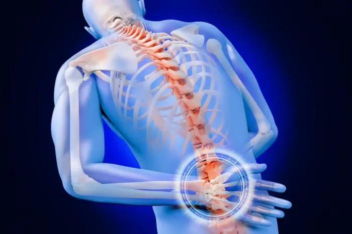 Understanding Herniated Discs & Its Diagnosis   Chiropractor