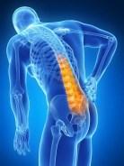 Lower Back Pain El Paso, TX