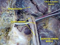piriformis muscle gross anatomy el paso tx