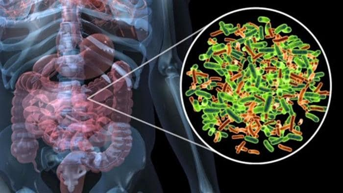 Image of digestive system demonstrating SIBO in irritable bowel syndrome.