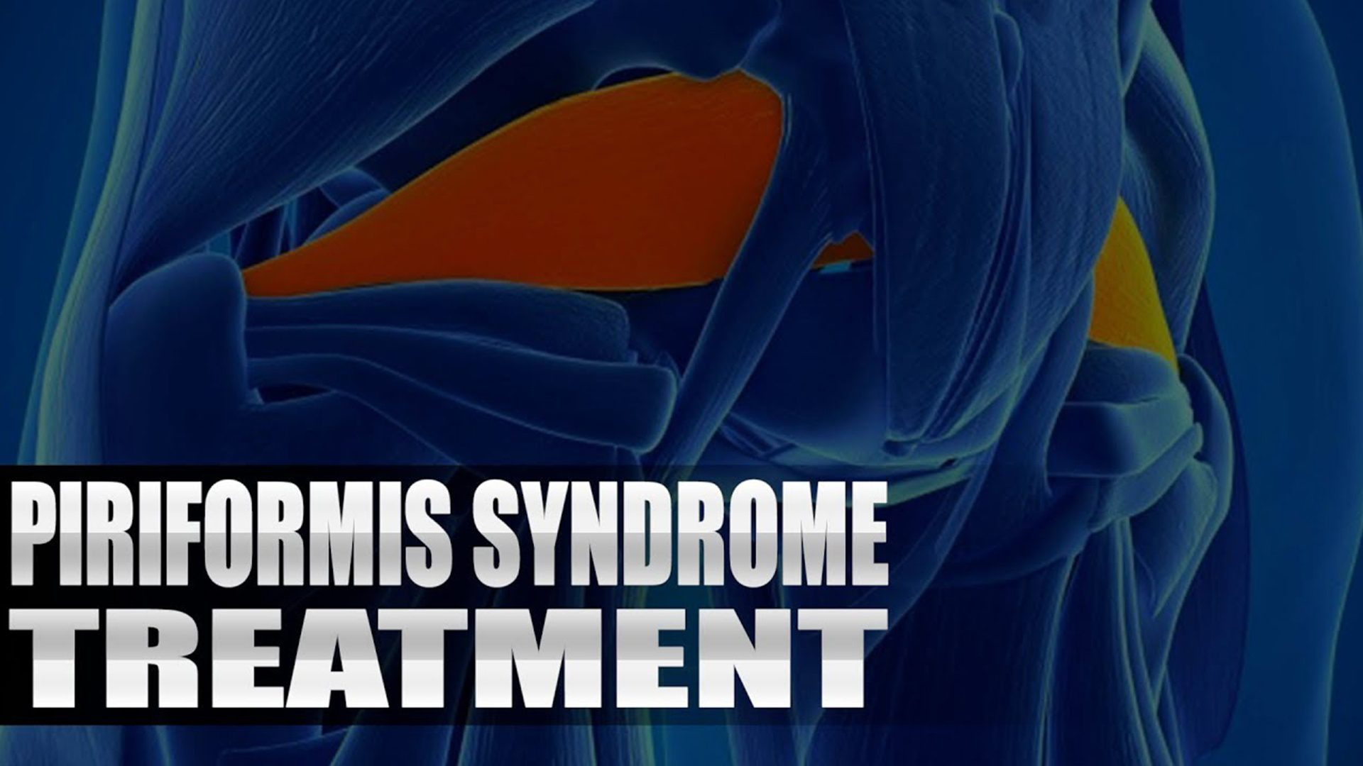 Piriformis Syndrome Treatment Chiropractor | El Paso, TX. | Video