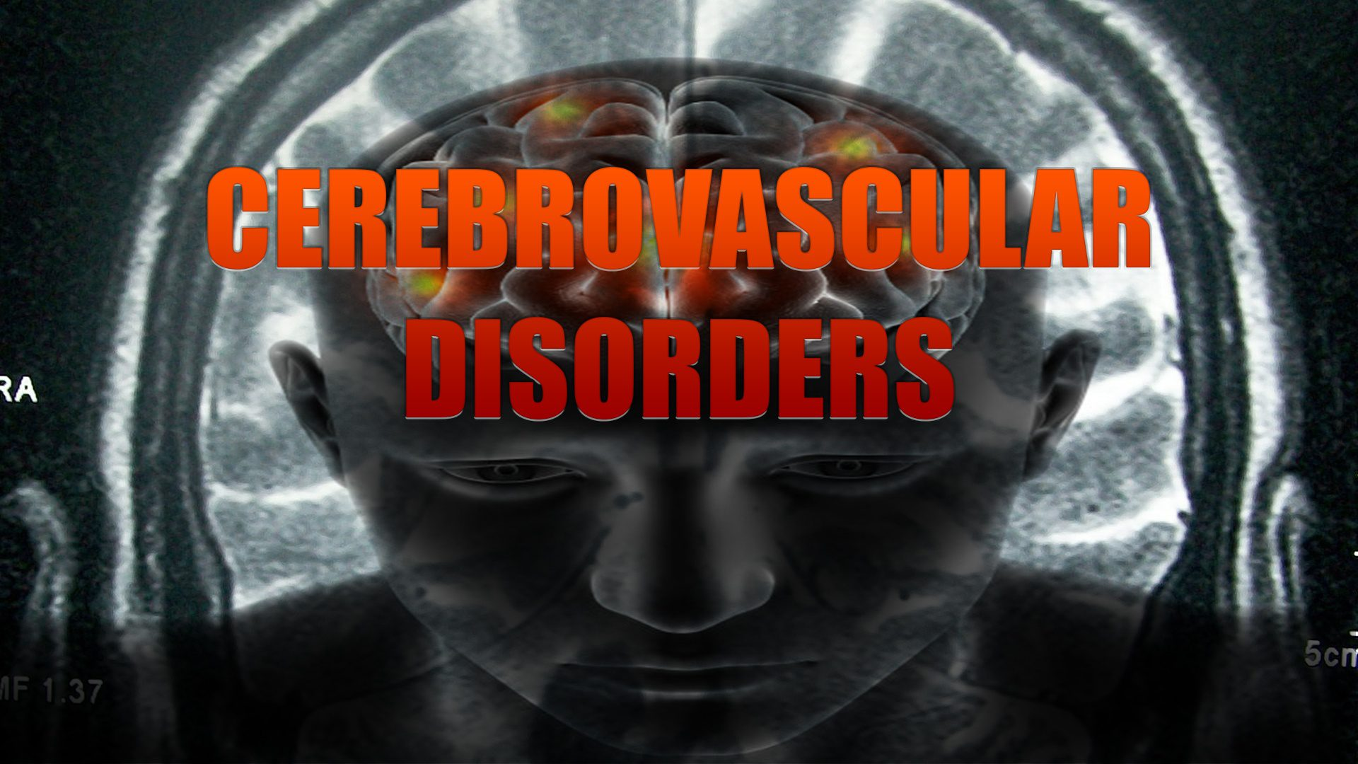 Cerebrovascular Disorders