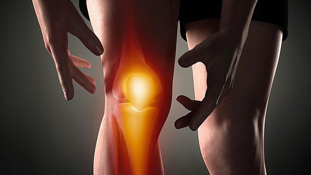 Evaluation of Patients Presenting with Knee Pain: Part II. Differential Diagnosis