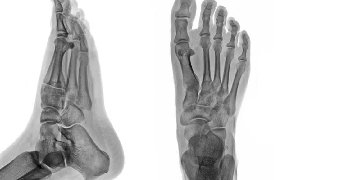 ankle foot arthritis and trauma el paso tx.