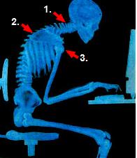 skeleton_slouch