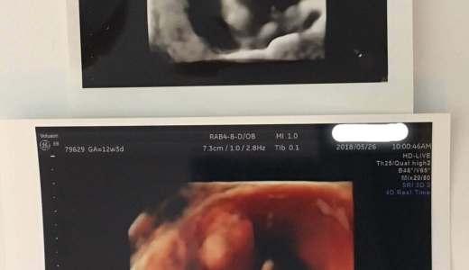 妊娠13週で経腟エコーから腹部エコーになった!