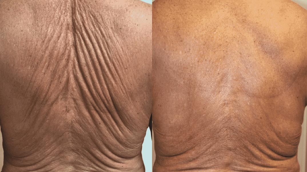 Ultrasons focalisés De la réparation à la régénération