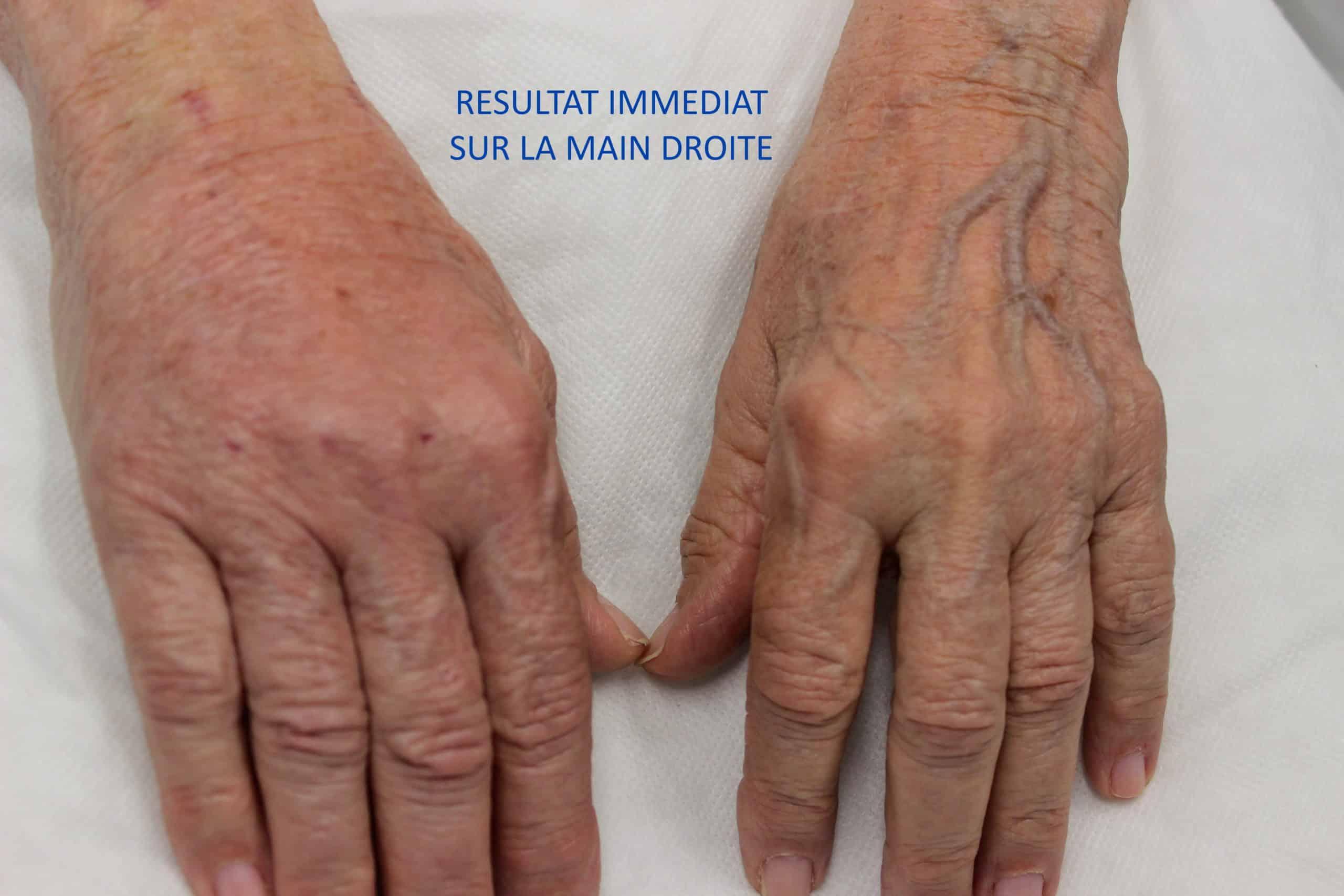 Lipofilling des mains