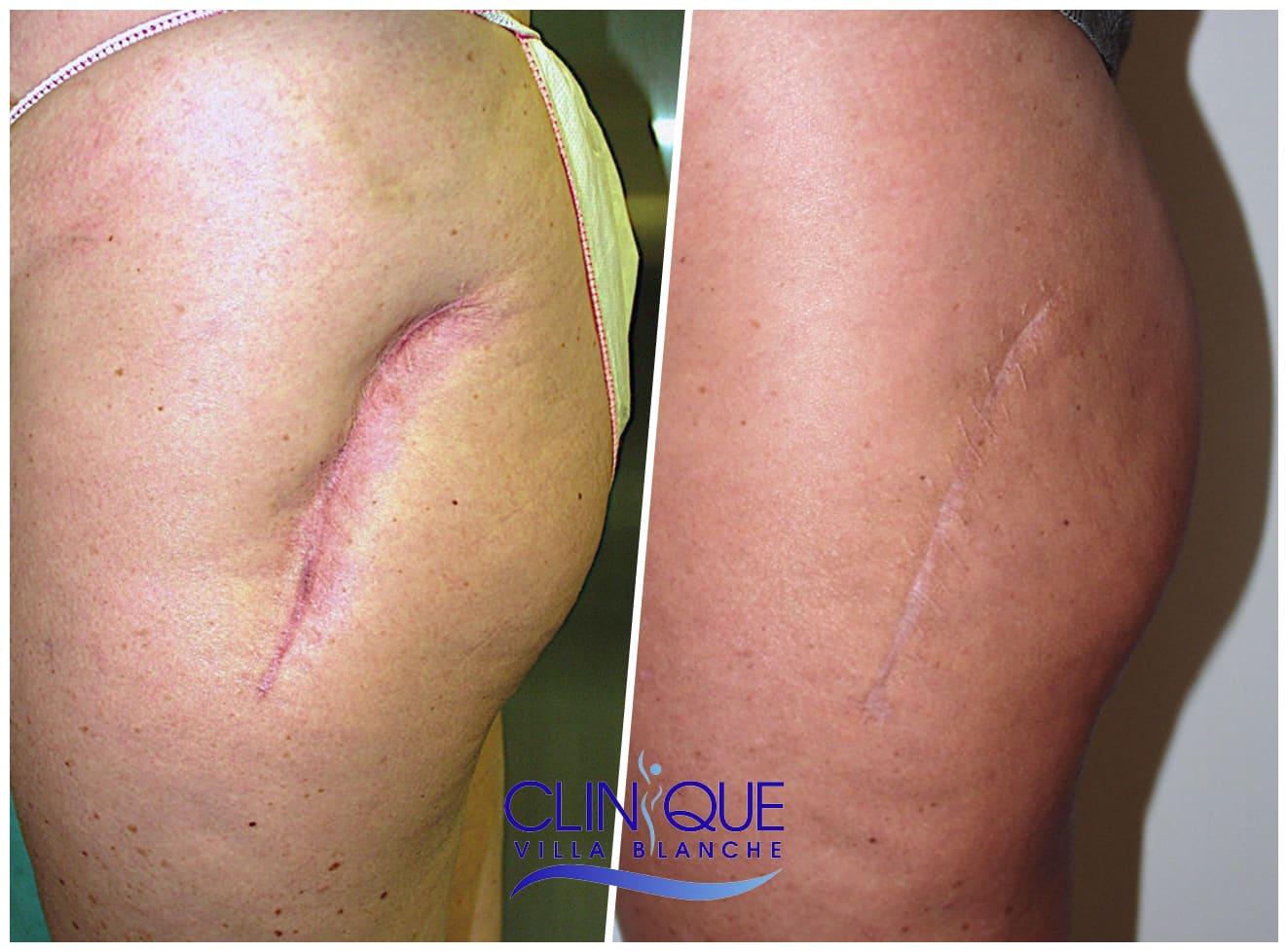 Indication du Lipofilling en Chirurgie Réparatrice