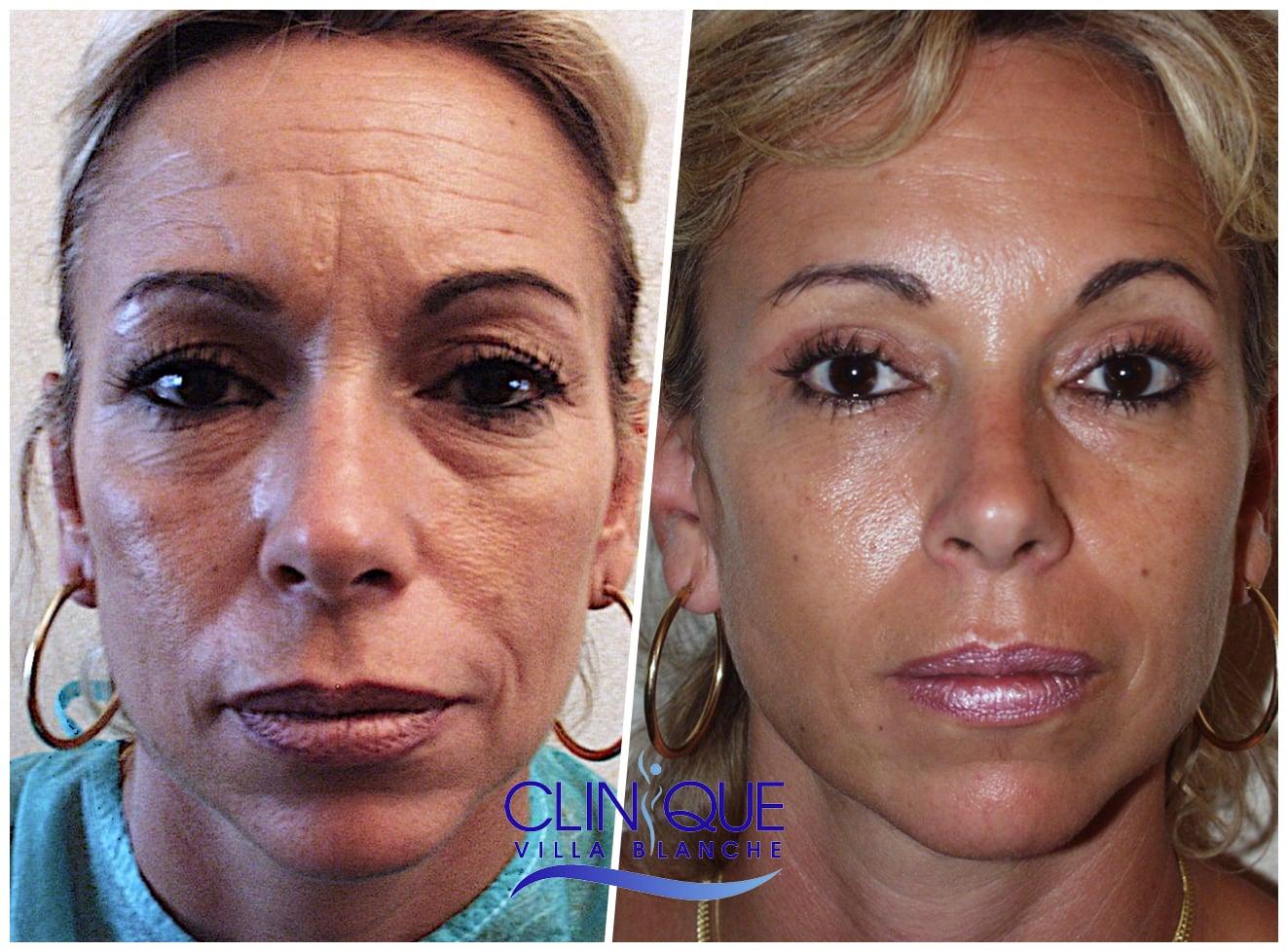 Indication du Lipofilling par le visage