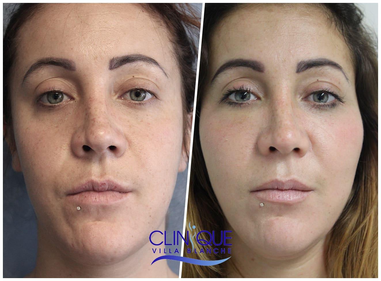 Indication du Lipofilling pour le visage