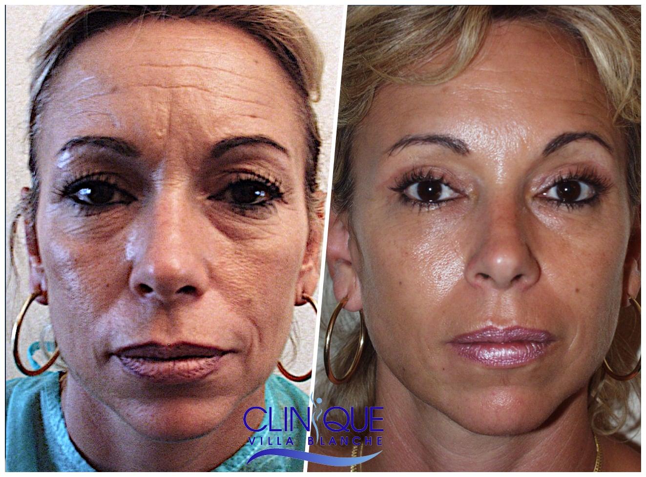 lifting du visage chirurgie esthétique Nice Cannes