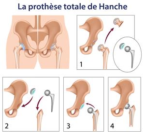 prothese-totale-de-hanche