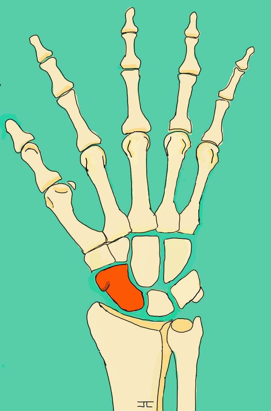 Dessin fracture scaphoide