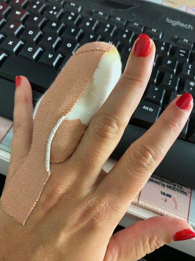 Romena finger injury