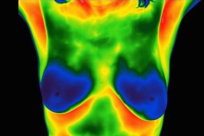 Breast Thermography_SantaRosa