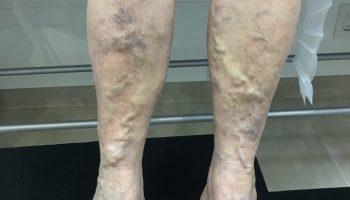 simptomele varicoase ale etapei inițiale uleiul sandalos din varicoză varicoză