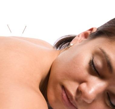 featured acupuncture