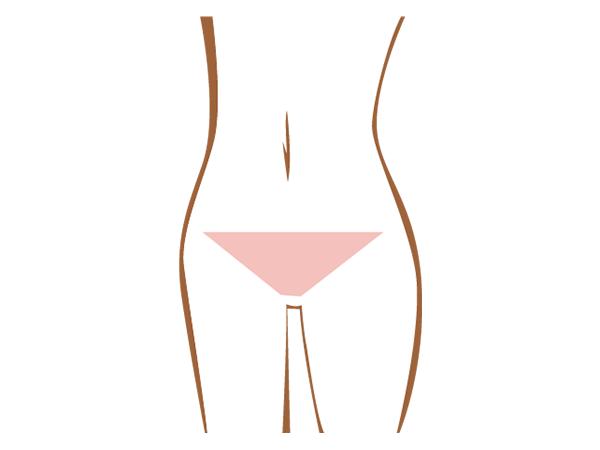 Vライン脱毛赤裸々体験談!自己処理・サロン脱毛の流れ